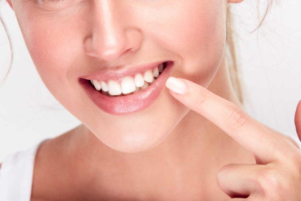 Usar kits de blanqueamiento dental por Internet, una tendencia muy peligrosa
